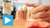 Dr Tony explains dental implants